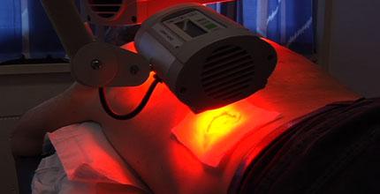 PDT - red light treatment