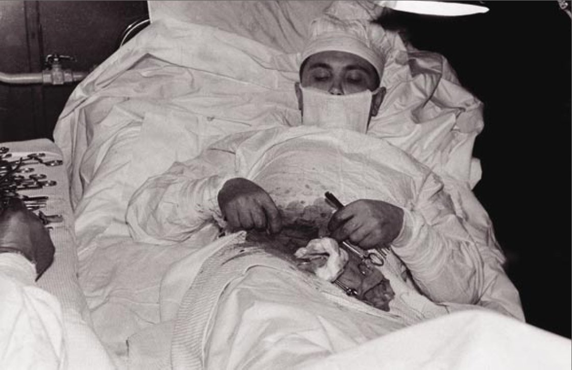Dr. Leonid Rogozov performing an appendectomy on himself.