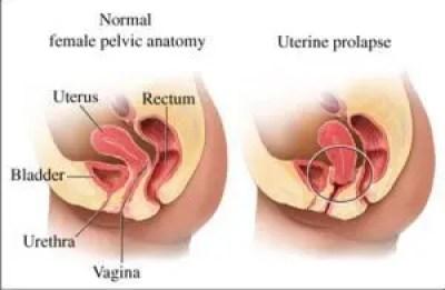 Verzakking van de baarmoeder