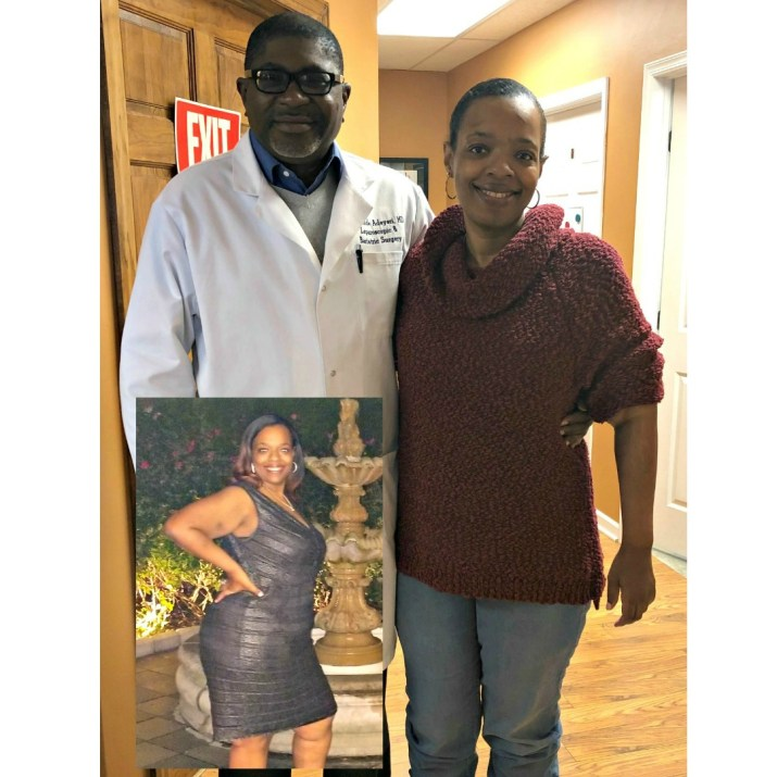Yolanda lost 112 pounds after weight loss surgery