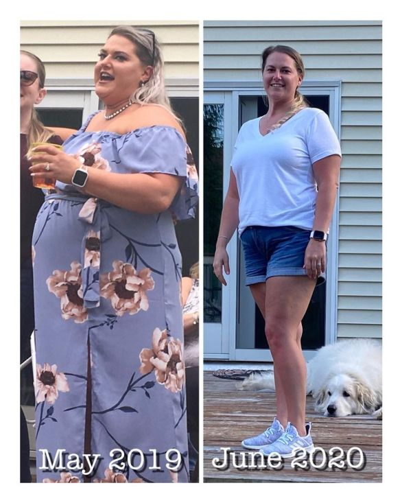 Christina had successful gastric sleeve weight loss surgery performed by Dr. Adeyeri in Old Bridge, NJ.