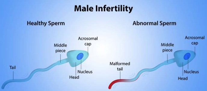 Anabolic Steroids and their Effect on Male Fertility