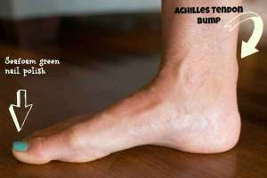 Achilles tendonitis tendon injury doctor saint george utah