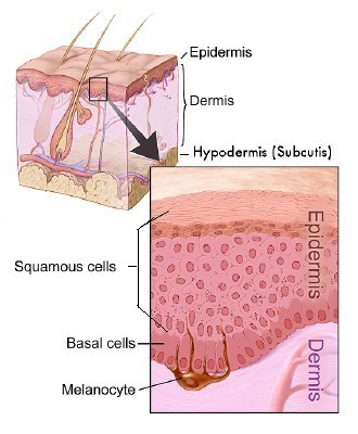 Recognize The 3 Types Of Skin Cancer Stilettomd