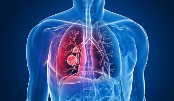 Ce sunt, de fapt, nodulii care pot apărea în plămâni. În 80% din cazuri nu sunt canceroși