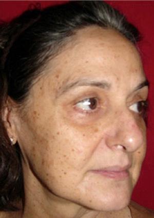 Co2 Facial Rejuvenation Before Patient #1