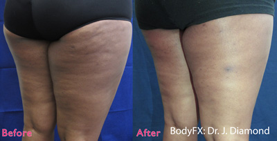 BodyFX for Cellulite Reduction - Before & After