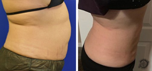 Liposuction Before and After Side - Patient #3