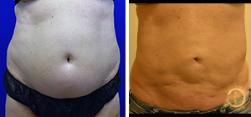 Liposuction Before and After Front - Patient #2