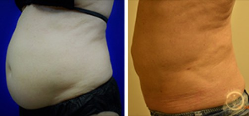 Liposuction Before and After Side - Patient #2
