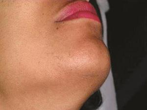Hirutism - Laser Hair Removal After
