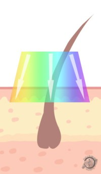 IPL Laser Graphic