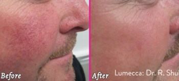Veins Cheeks - Before and After