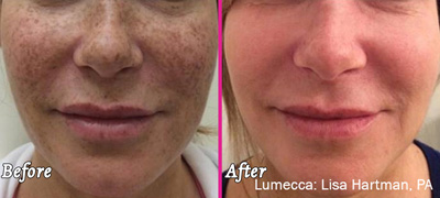 Lumecca - - Before and After