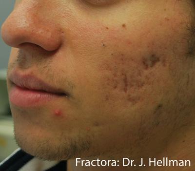 Fractora Skin Resurfacing After