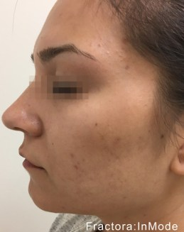 Fractora Skin Resurfacing Before and After
