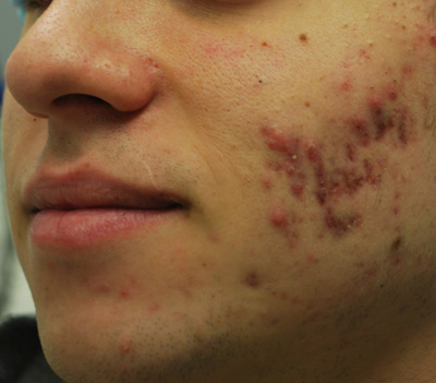 Fractora Skin Resurfacing Before