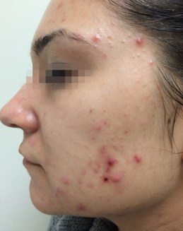 Fractora Before and After 1