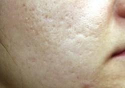 Acne Scarring Before - Sublative Rejuvenation - 2