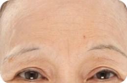 LightStim LED - Wrinkles & Anti-Aging Light Before 1