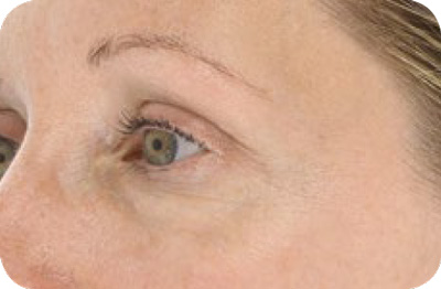 Wrinkles After - LED Light Therapy