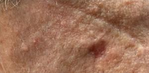 Actinic Keratosis (Solar Keratosis) After