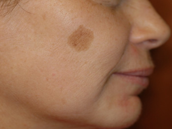Brown Spots Before