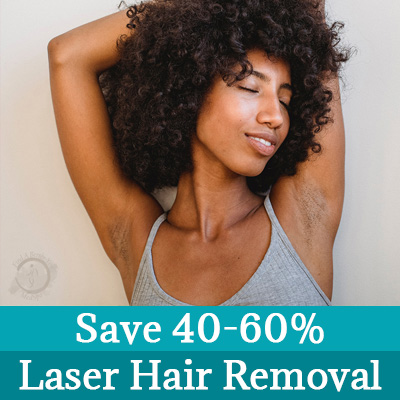 Laser Hair Removal Deal