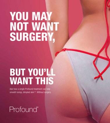 Profound - Non-Surgical Tummy Tuck