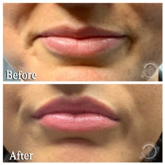 Botox Lip Flip - Upper Lips