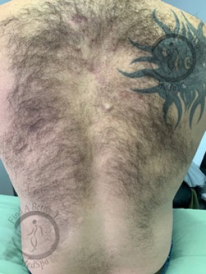 Laser Hair Removal Before - Back