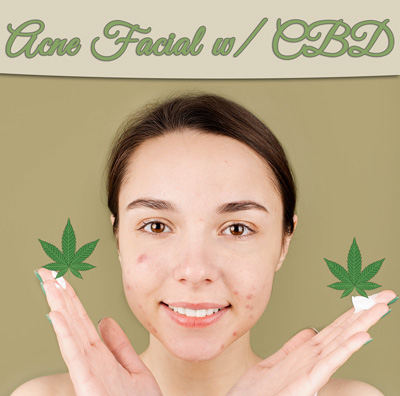 Best St Peters Acne Facial with CBD