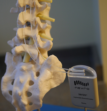 High-Frequency Spinal Cord Stimulation