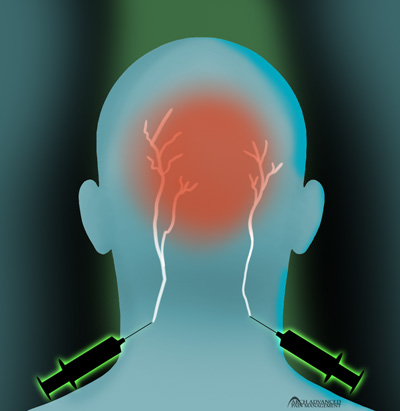 Occipital Neuralgia Injection Graphic