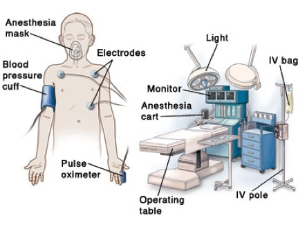 WHAT to Expect in the Operating Room