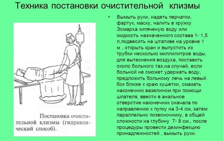 cauzele bărbaților varicoși varicoși