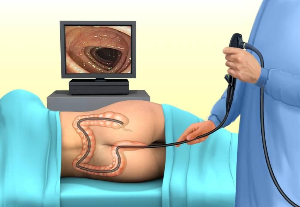 Можно ли заменить колоноскопию чем то другим. Колоноскопия чем можно заменить. Альтернатива колоноскопии сигмовидной кишки