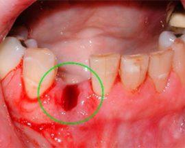 Памятка для лишившихся зуба: что нельзя делать после удаления. Что нужно делать после удаления зуба: что можно, а что нельзя