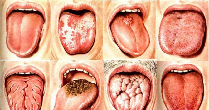 Немеет язык кружится голова. Причины, почему немеет язык и кружится голова
