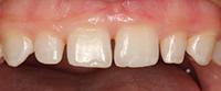 Плохая морфология передних зубов, диастемы и избыточная ткань