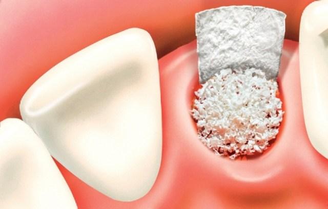 Термообработка костной ткани - in vitro реакция мезенхимальных клеток на кондиционированную костную среду
