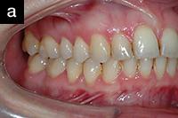 Снимок щечной группы зубов, сделанный с использованием прозрачного пластикового ретрактора