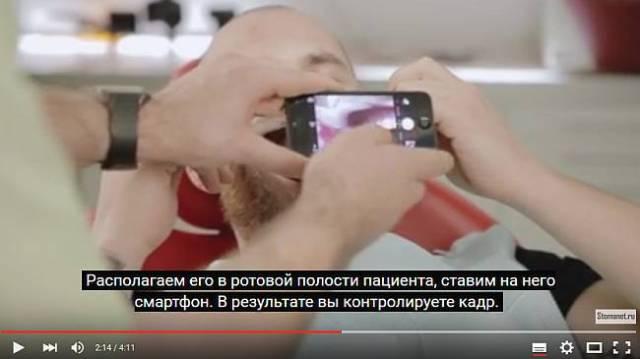 Дентальная фотография с помощью смартфона (видео)