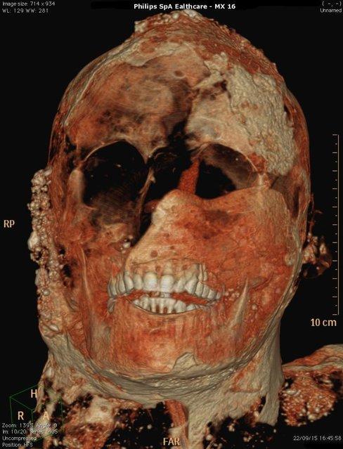 Прекрасно сохранившиеся зубы жителя г. Помпеи