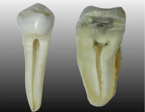Сравнение дисколорита коронковой части зуба, вызванного различными эндодонтическими материалами