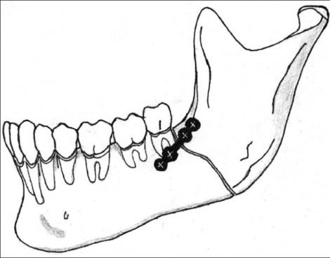 Бессимптомные третьи моляры при переломе в области угла нижней челюсти - удалять или сохранять