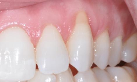 Исследование эффективности простой и электрической зубной щетки у пациентов с рецессией десны