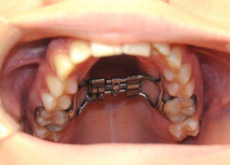 Как быстрое нёбное расширение влияет на трансверсальные размеры нижней челюсти
