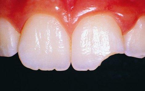 Как отреставрировать керамический зубной протез, а не менять его - пошаговое руководство
