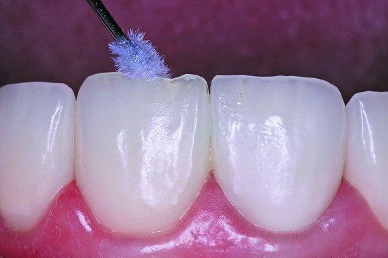 Рис. 4 - Как отреставрировать керамический зубной протез, а не менять его: пошаговое руководство